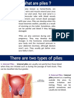 What Are Piles and Its Homeopathic Treatment.