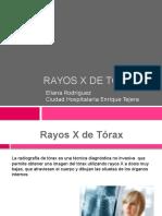 Rayos x de Tórax