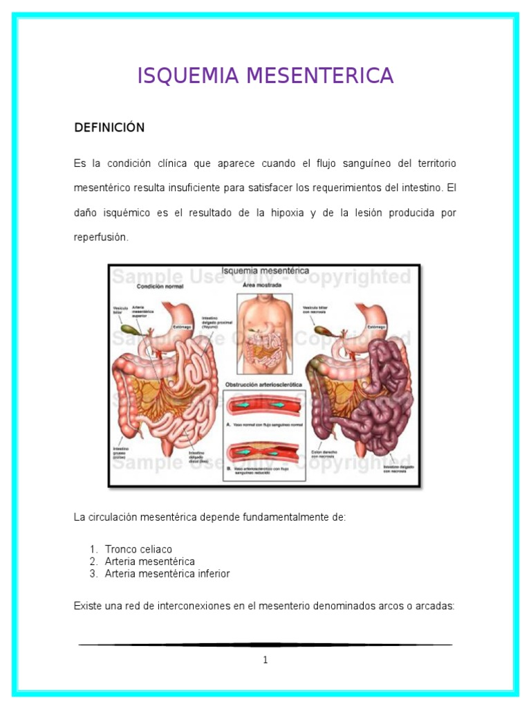 Trombosis Mesenterica Pdf Download