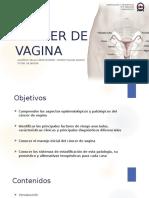 30. Cáncer vulva y vagina