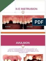 AVULSION E INSTRUSION.pptx