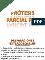 Prótesis Parcial Fija
