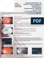 Cartel Anterior Segment Disgenesia