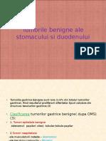 Tumorile Benigne Ale Stomacului Si Duodenului
