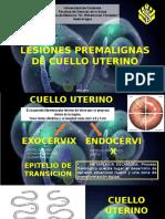 Lesiones Premalignas Cuello Terino