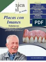 alta tecnica dental - placas con imanes