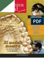 alta tecnica dental - el modelo maestro
