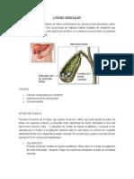 litiasis vesicular.docx