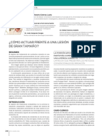 276_CIENCIA_LesionGranTamano (1).enero2016pdf.pdf