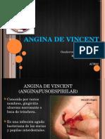 Angina de Vincent