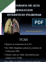 Diagnóstico Por Imagen II - Tomografía, Intersticio Pulmonar