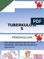 TBC - Irwan