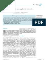 empiema.pdf