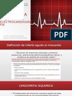 Cardiopatia Isquemica EKG