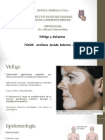 Vitiligo y Melasma