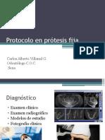 Protocolo en Prótesis Fija