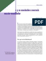 Bifosfonatos y Su Asociacion a Necrosis Maxilo-mandibular