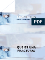 1.Fracturas.-generalidades