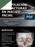 Clasificación de Fracturas en Macizo Facial