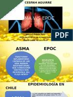 Asma Versus Epoc