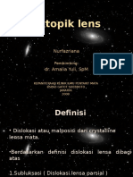 Ektopik Lens