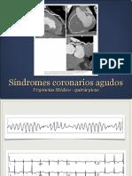 URENCIAS_Síndromes Coronarios Agudos_Dr. Remolina 2014