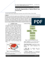 Glaucoma Screening Test By Segmentation of Optical Disc& Cup Segmentation Using MATLAB