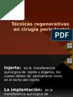 Técnicas Regenerativas en Cirugia Periodontal