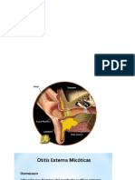 micosis auditiva.pptx