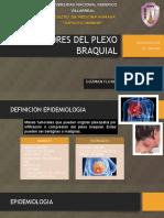 Tumores Del Plexo Braquial