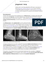 Posterior Ankle Impingement - bony — Rayner & Smale.pdf