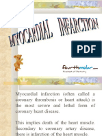Myocardial Infarction Oral Surgery
