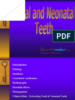 Natal Neonatal Teeth Pedo