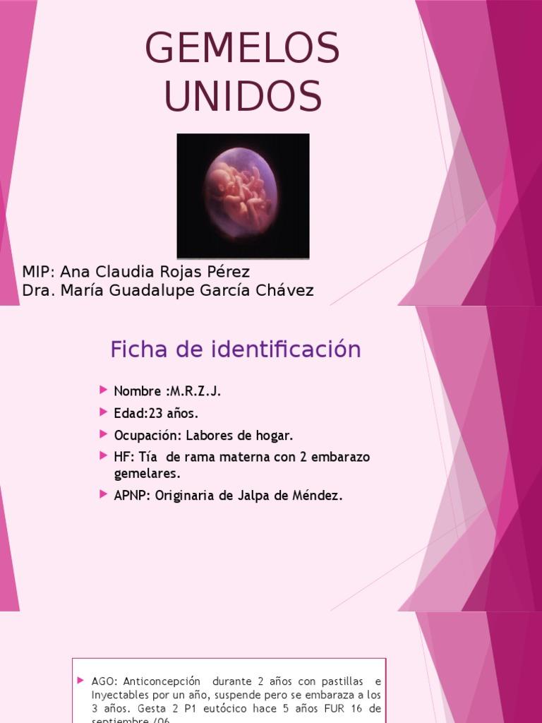 GEMELOS UNIDOS2