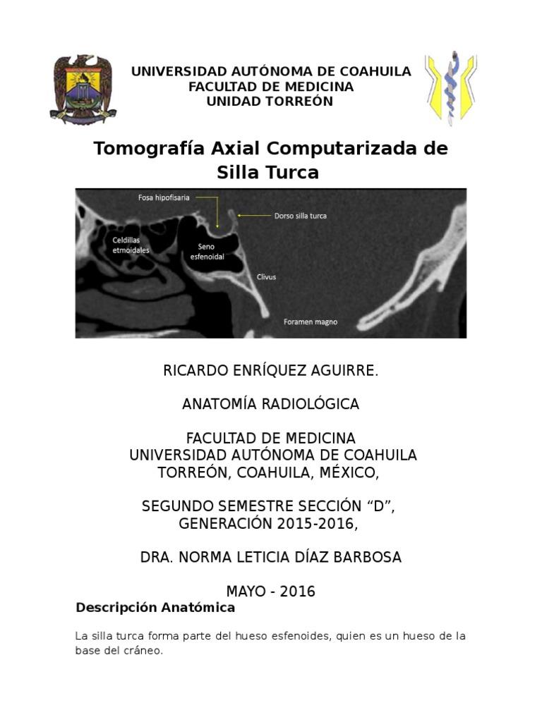 Tomografía de Silla Turca