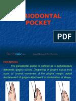 Peridontal Pocket Perio