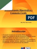 Miocardiopatía Hipertrófica y Commotio Cordis