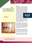 premolarización