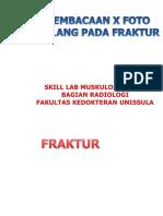 (new) skill fraktur.ppt