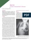 Intestinal Duplication Cyst