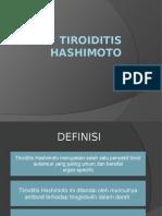 Tiroiditis Hashimoto