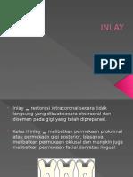 Ppt Inlay Onlay Uplay