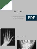 Artroza - reumatologie