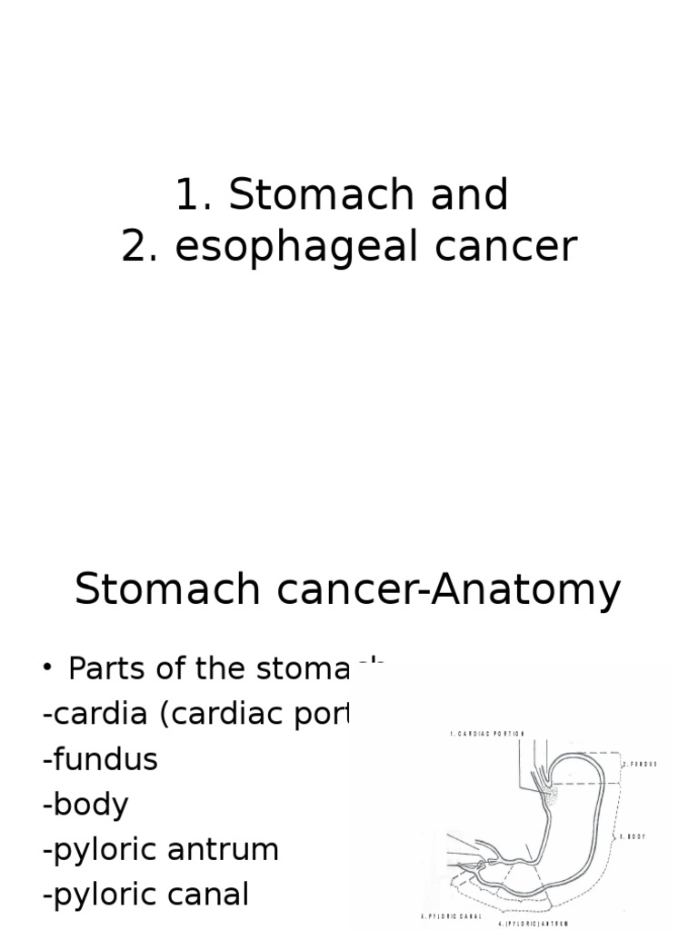 Stomach and Esophageal Cancer | Esophagus | Esophageal Cancer
