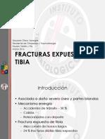 Fractura Expuesta de Tibia