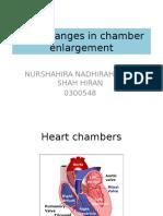 ECG changes in chamber enlargement.pptx