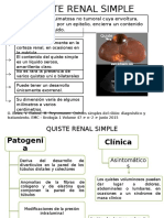 Quiste Renal Simple