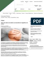Tipos de Realce de Nódulo Na Ressonância Magnética de Mama _ Fleury Medicina e Saúde