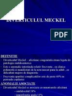 DIVERTICULUL_MECKEL