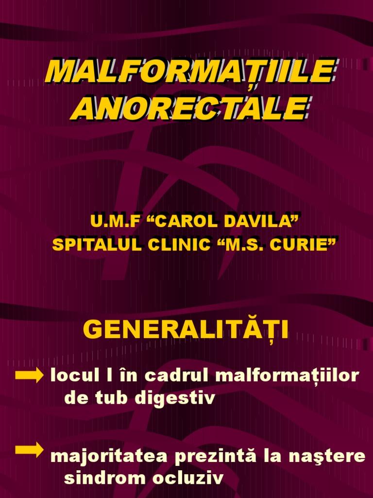 stenoza rectala